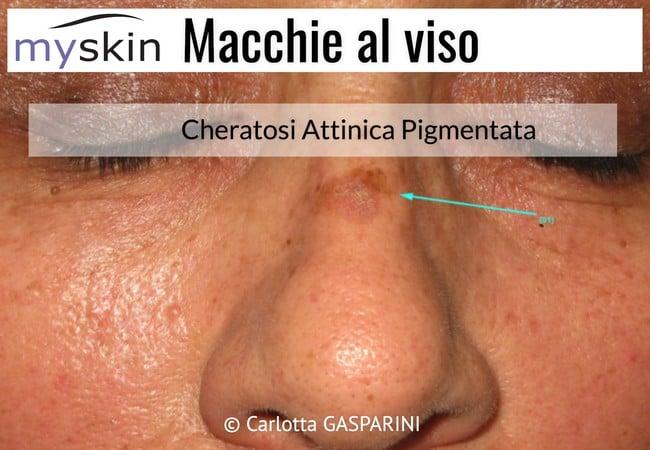 macchie_al_viso_-_cheratosi_attinica_pigmentata