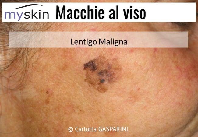 macchie_al_viso_-_lentigo_maligna