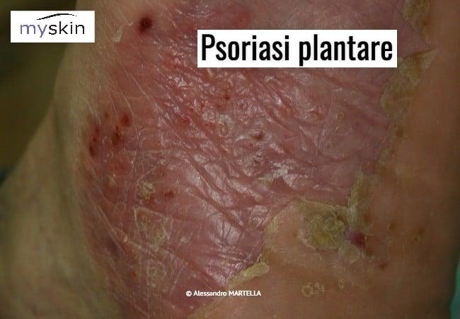 psoriasi_plantare