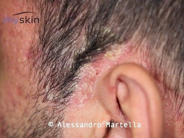 Dermatite seborroica del cuoio capelluto (corona seborroica)