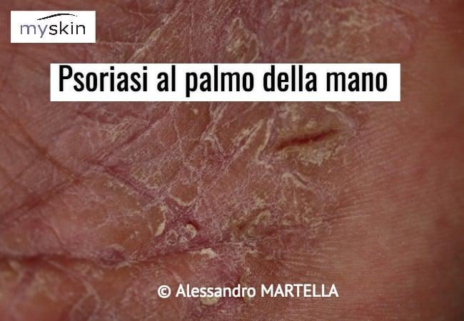 Psoriasi al palmo della mano
