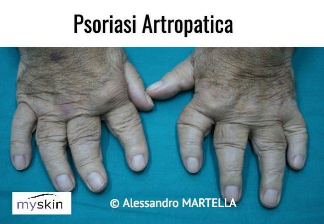 Psoriasi artropatica