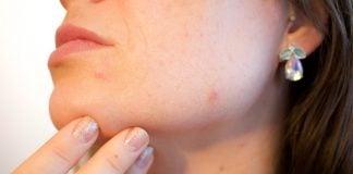 acne viso