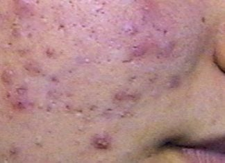 acne viso cura