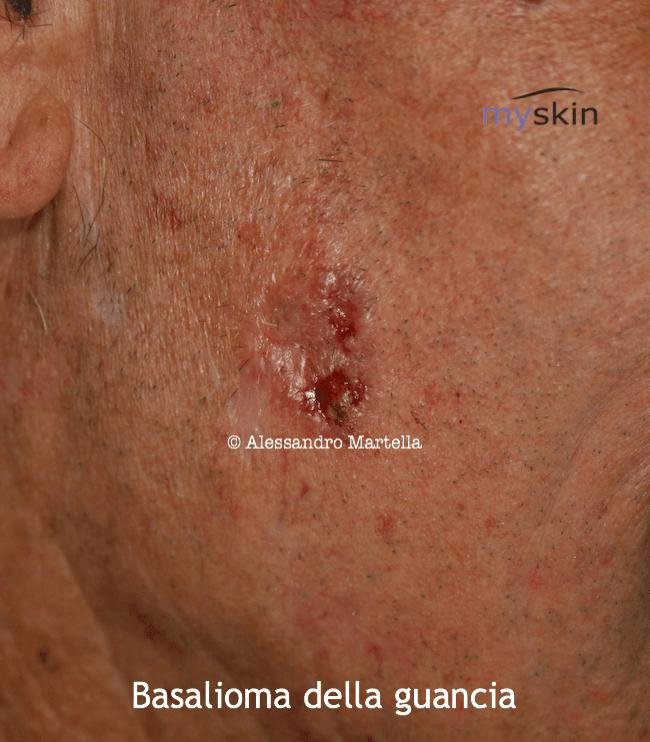 Basalioma della guancia
