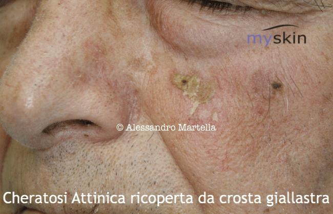 Cheratosi attinica