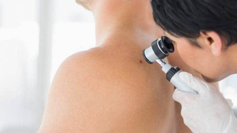 Il controllo dei nevi e la diagnosi precoce del melanoma