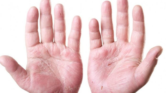 dermatite atopica 1