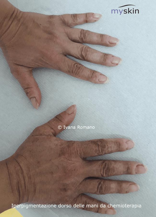 ipercpigmentazione_cht-dorsomani