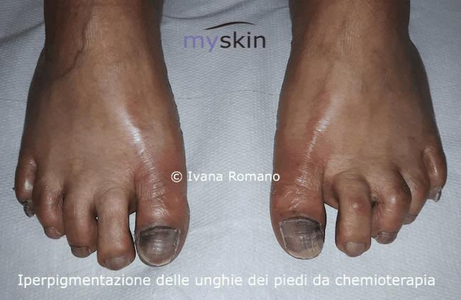 iperpigmentazione unghie