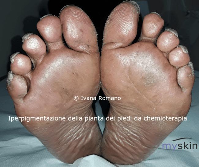 iperpigmentazione plantare