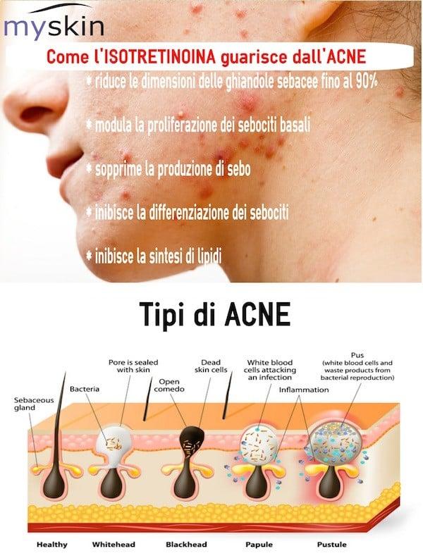 isotretinoina_infografica