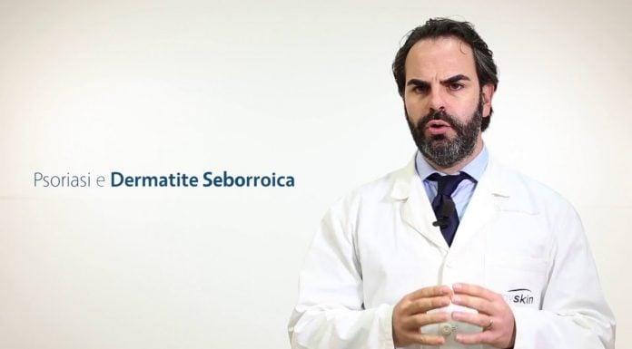 dermatite seborroica e psoriasi