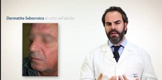 Dermatite seborroica: come si manifesta