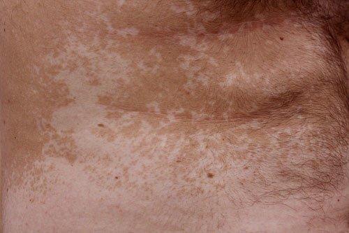 Pitiriasi Versicolor: chiazze ipopigmentate