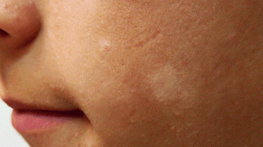 macchie viola brufoli