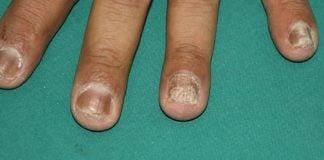 psoriasi ungueale