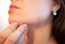 acne-depressione
