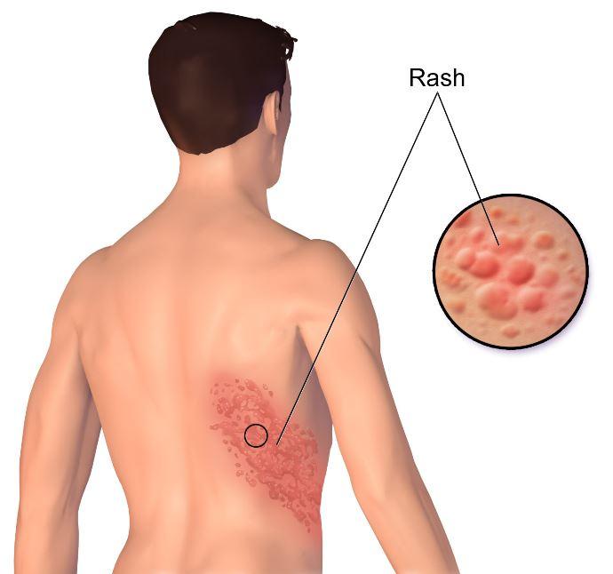 Herpes-Zoster-Rash-cutaneo