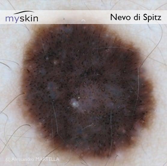Nevo di Spitz - immagine dermatoscopica