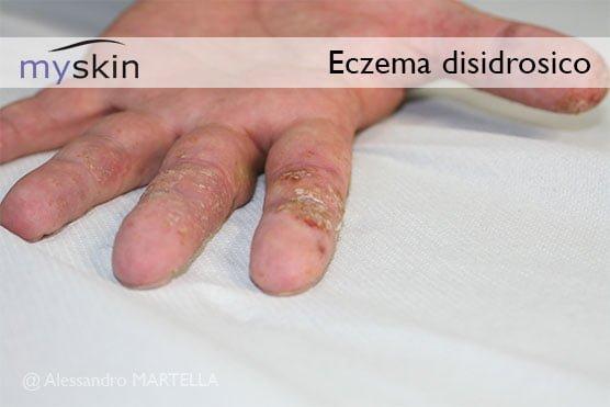 eczema disidrosico mani