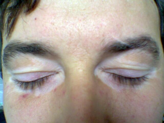 Vitiligine agli occhi