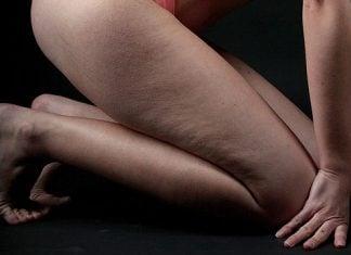 Cellulite-cosce