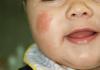 Impetigine sul volto di una bambina