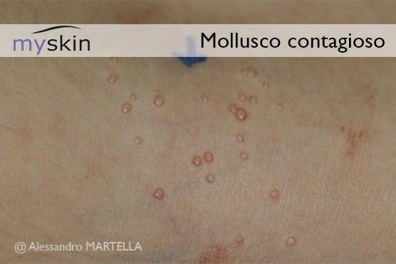 Mollusco-contagioso-immagine