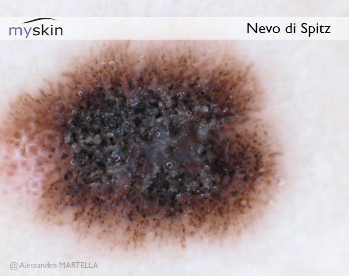 Nevo-di-Spitz-dermatoscopia