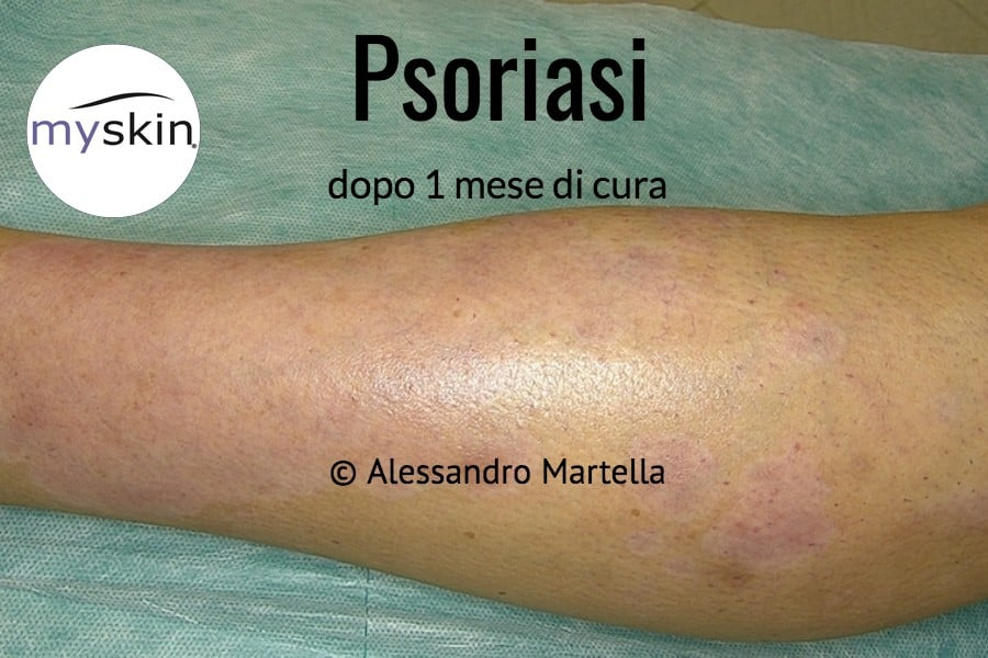 Foto di Psoriasi guarita