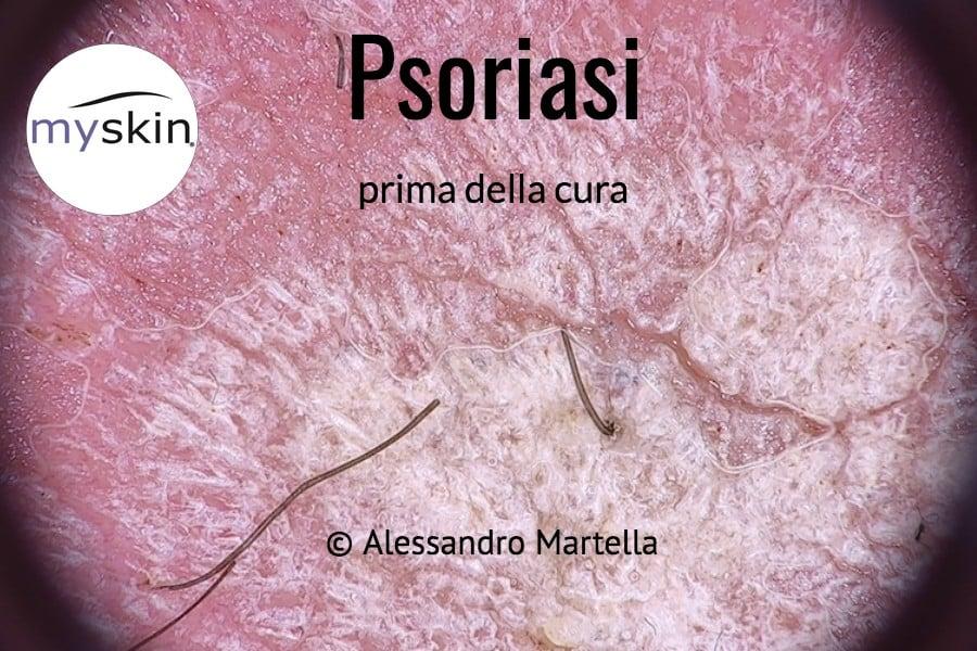 Psoriasi foto in dermatoscopia