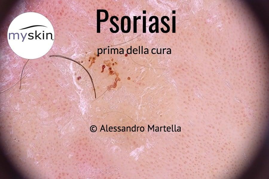 Psoriasi osservata in dermoscopia