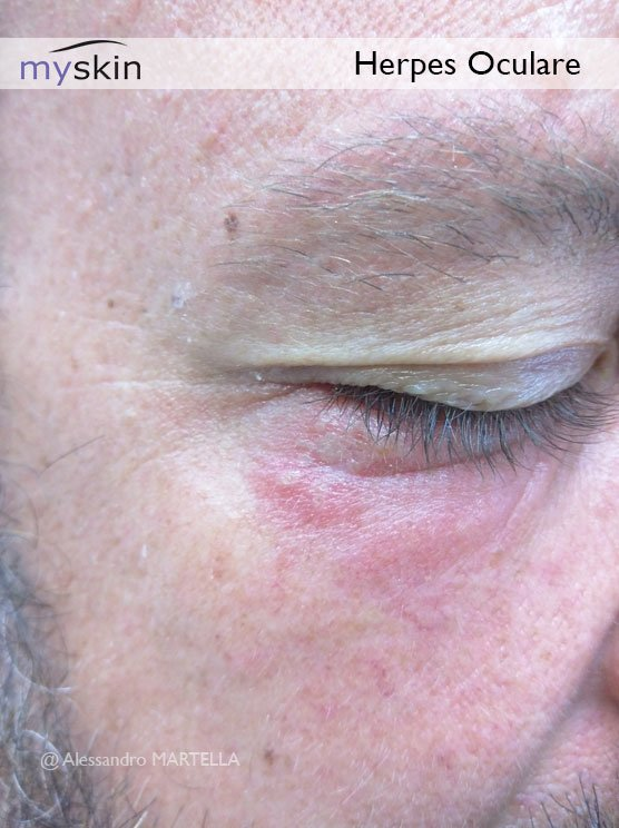 herpes-oculare-immagine