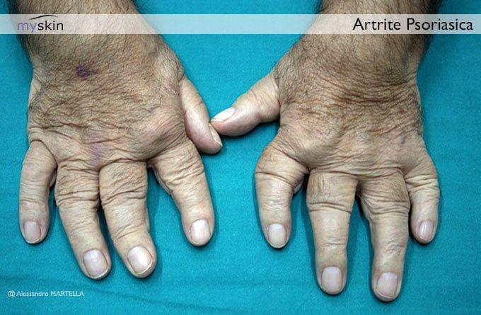 artrite-psoriasica