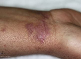 Lichen planus è un'eruzione cutanea innescata dal sistema immunitario.