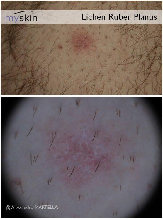 Il dermatologo può analizzare mediante dermoscopia l'eruzione cutanea per definirne meglio la natura.