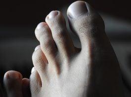 unghie-piedi
