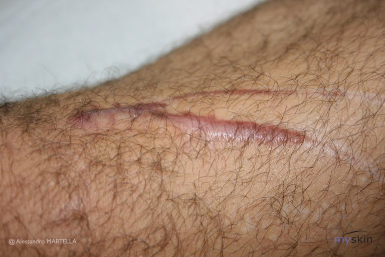 Le cicatrici ipertrofiche: cause e trattamento