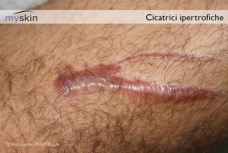 Una cicatrice ipertrofica è una cicatrice ispessita, ampia, spesso sollevata, che si sviluppa in seguito ad un trauma o una ferita.
