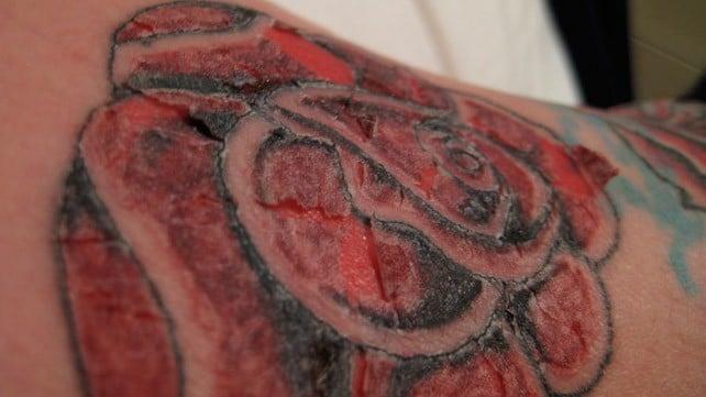 tatuaggio,infetto