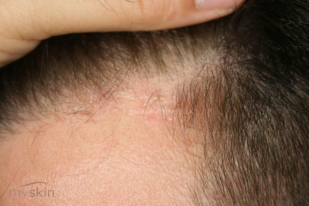 dermatite-seborroica