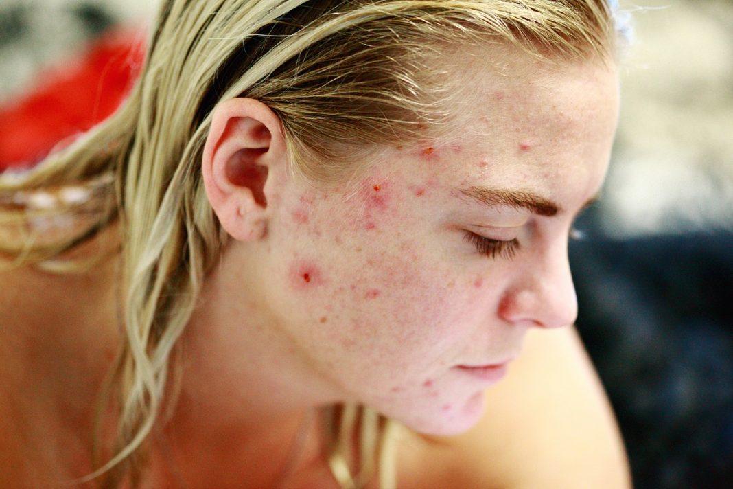 acne-donna