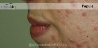 acne-papule