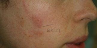 dermatite-allergica-contatto