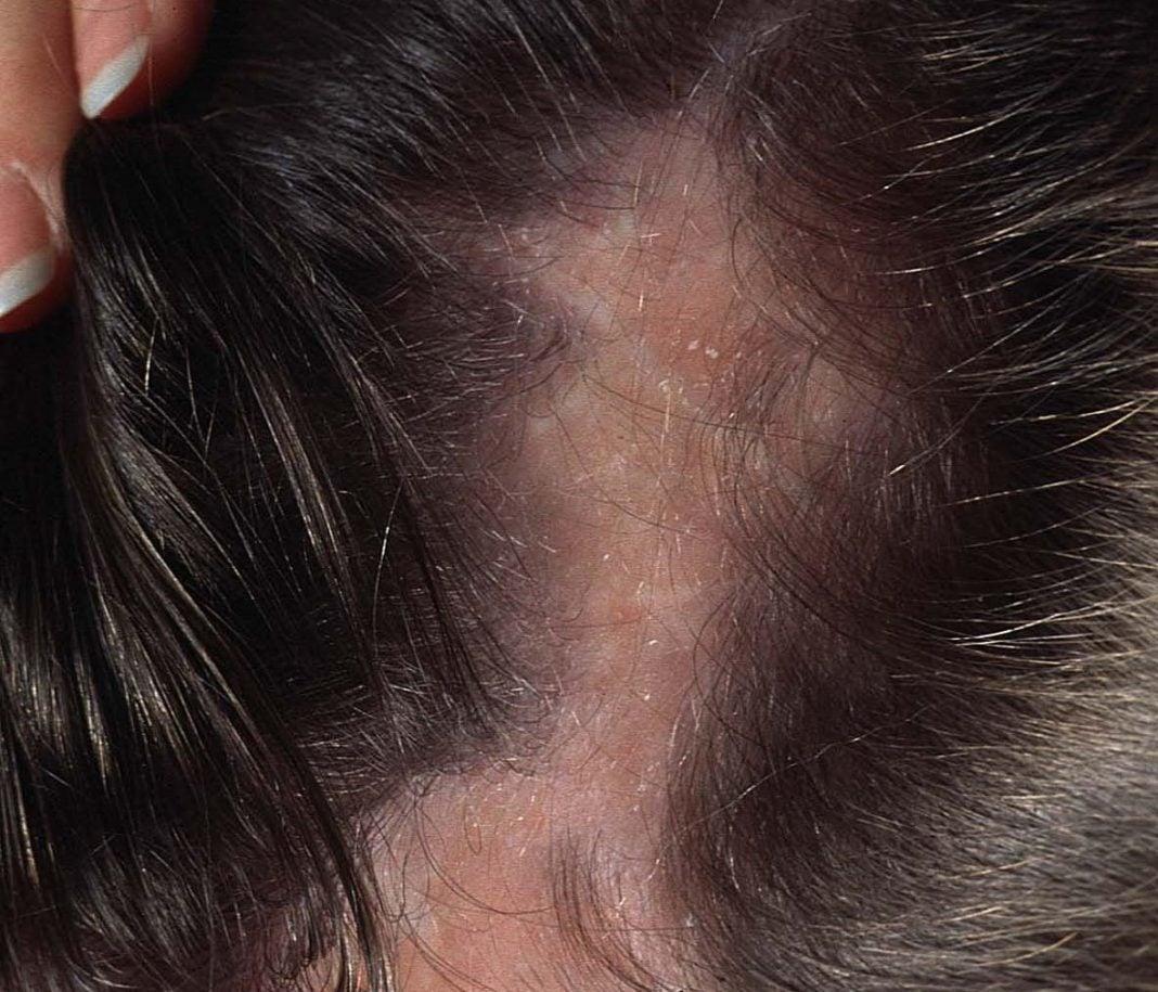 Scleroderma-frontale-lineare