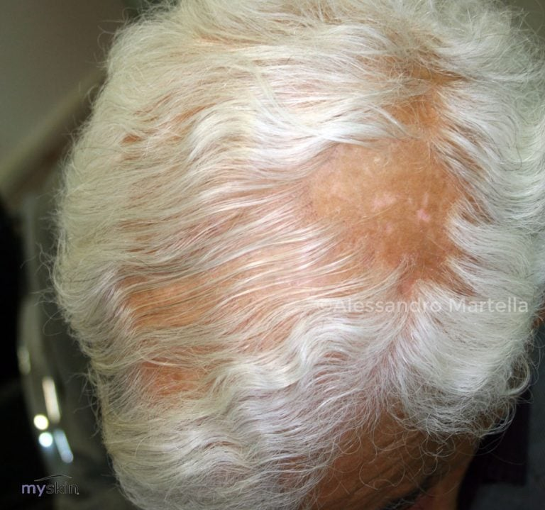 Alopecia fibrosante: cosa è, come e perché si manifesta
