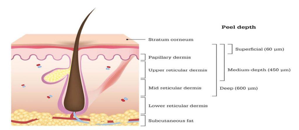 epidermide-derma