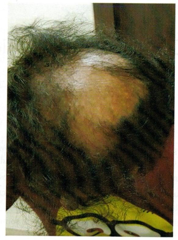 alopecia cicatriziale centrale centrifuga