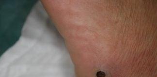 sarcoma-di-kaposi
